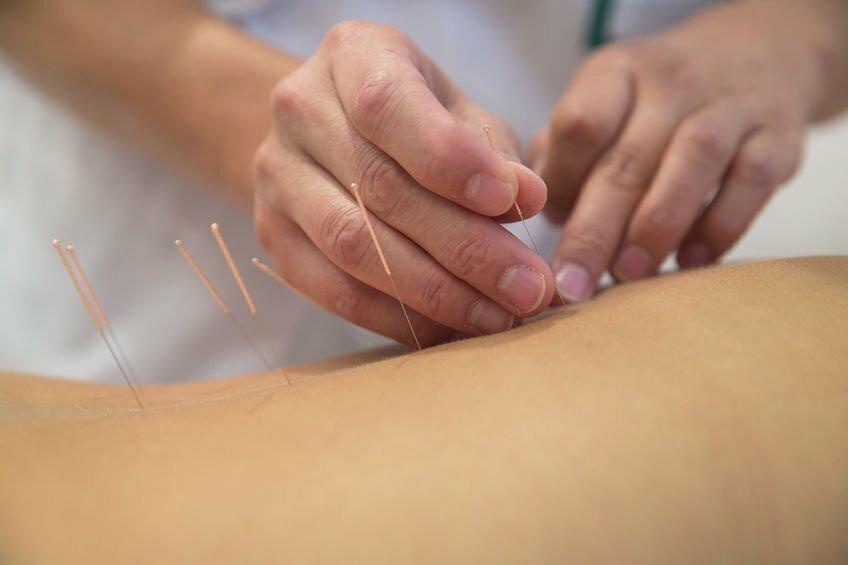 Bild zeigt Akupunktur